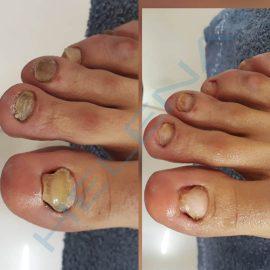 Medikal Ayak ve Tırnak Bakımı